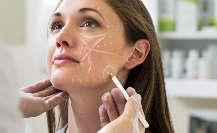 Preparing to Get a Cheek Groove Filler – Are these Fillers Dangerous?